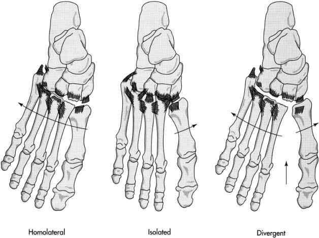 do you know what a �lisfranc� injury is performance