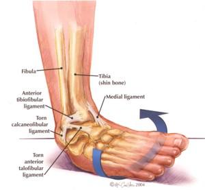 ankle_sprain1