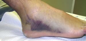 ankle_sprain3
